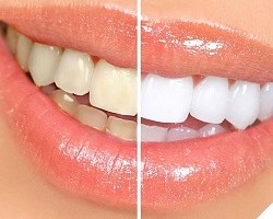 Teeth Whitening Kit Review Guide